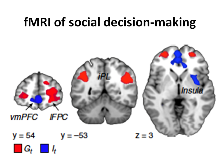 """Brain networks involved in the calculation of """"individual utility"""" (It)  and """"Group utility"""" (Gt) from the social learning model. J-C. Dreher - ISC"""
